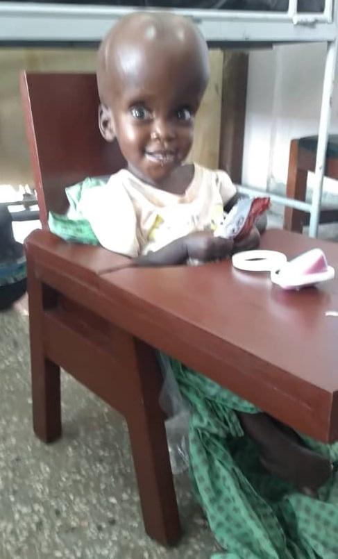 2. Ayumo Janet, Age 21 Months, Aputon Village, Arapia Town, Soroti District